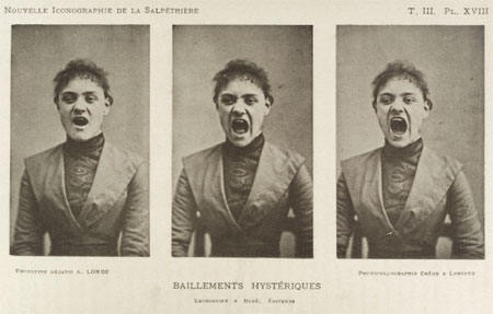 A hysterical woman. Wellcome Images