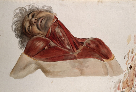 Partially dissected head, by Johann Conrad Zeller