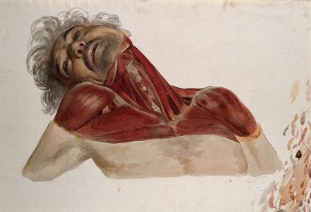 Partially dissected head, by Johann Conrad Zeller