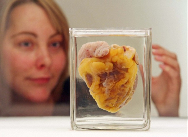 Jennifer Sutton looks at her own heart in Wellcome Collection's opening exhibition, The Heart
