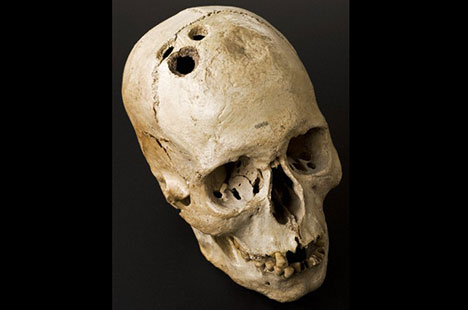 Bronze Age skull from Jericho. Wellcome Images.