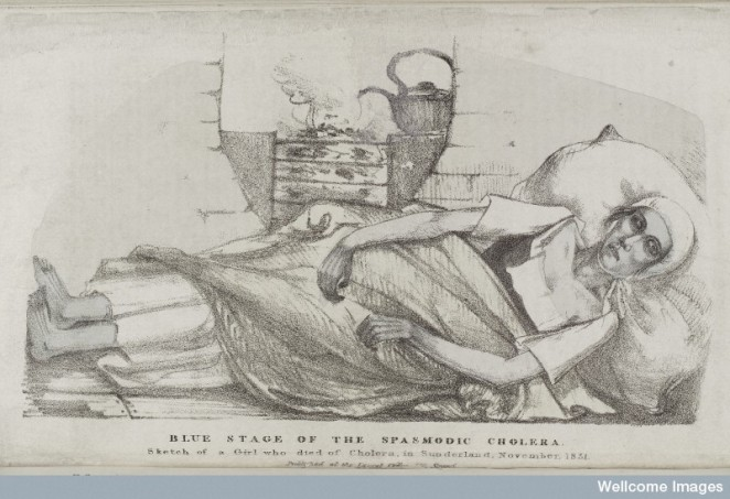 Thomas Wakley, Blue stage of the spasmodic Cholera. Wellcome Images