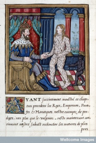 A virgin entirely furry like a bear presented to the Empereur and King of Boheme, 1560. From Histoires Prodigieuses.