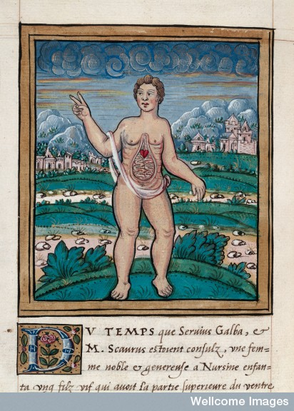A young child whose intestines were exposed to view, through a strange infirmity of nature, 1560. From Histoires Prodigieuses.