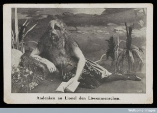 Postcard showing Lionel the Lion Faced Boy, born in 1890 .