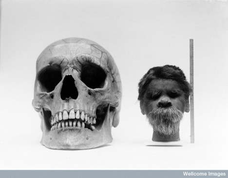 Shrunken head compared with normal human skull