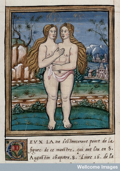 Monster (conjoined twins) born on the borders of England and Normandy,  1560. From Histoires prodigieuses.