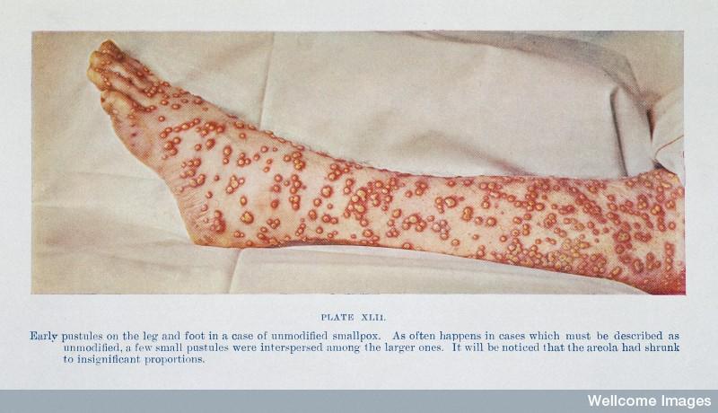 Early pustules of smallpox.