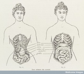 Illustrations to denounce the crimes of the corset.