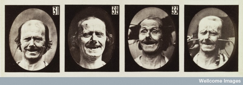 A man having his face stimulated by electricity in an experiment on the electro-physiological expression of passions.
