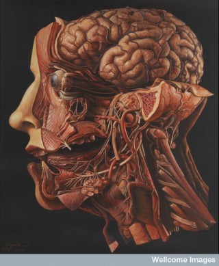 """A human head dissected, """"In memoriam"""". Acrylic painting by R. Ennis, 2001."""