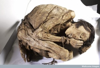 A naturally preserved Peruvian mummified male in the foetal position.