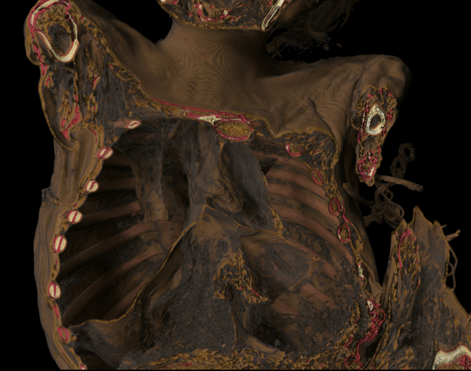Chest cavity of A 31656 showing diaphragm and heart.