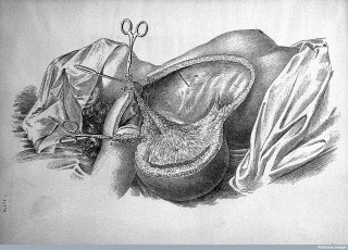 L0022481 Surgery: cancer of the breast.