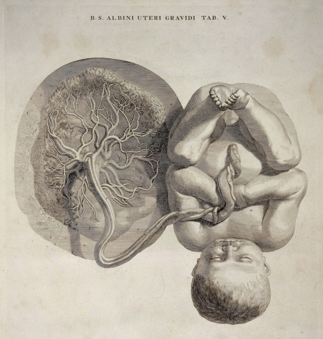 Foetus attached to the umbilical cord and placenta (Wellcome Collection).