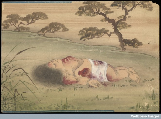 Kusozu: the death of a noble lady and the decay of her body.
