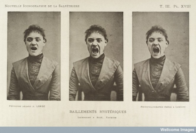 Three photos in a series showing a hysterical woman yawning.