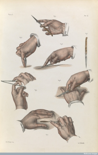 Various positions for holding a scalpel when performing an incision. All the harder to look at after watching 'Hush'.