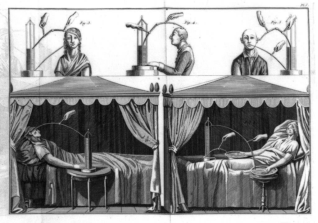 Aldini's experiments led him to explore Galvanism as a medical treatment including for mental disorders.