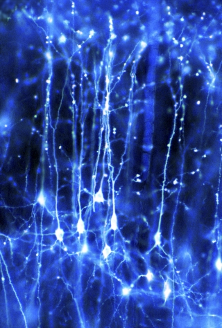 Pyramidal neurons forming a network in the brain. Credit: Dr Jonathan Clarke / Wellcome Images.