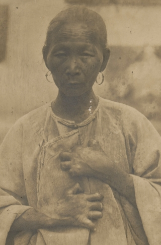 """A Chinese woman suffering from leprosy. In the 1880s, the president of the Louisiana State Board of Health blamed the """"filthy, vicious, debased… Chinese"""" for the disease."""