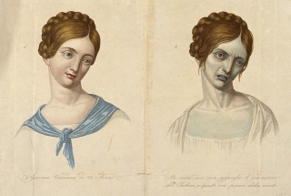 V0010485 A young Viennese woman, aged 23, depicted before and after