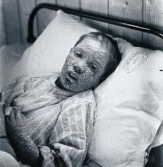V0031460 Gloucester smallpox epidemic, 1896: Ethel Cromwell