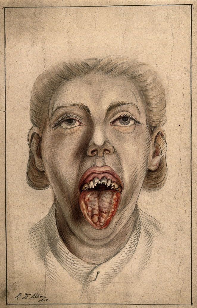 V0010166 Woman with diseased tongue and broken teeth, 1874.